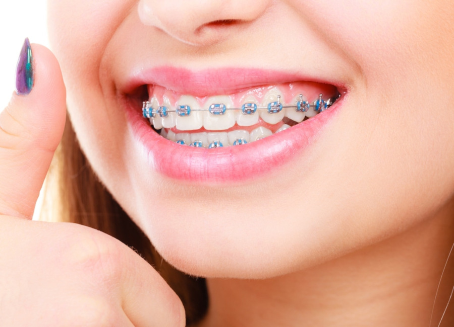 Ortodoncia tradicional con brackets